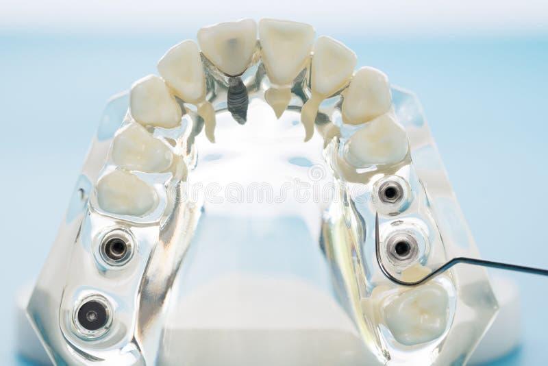 Implante e modelo ortod?ntico imagens de stock royalty free