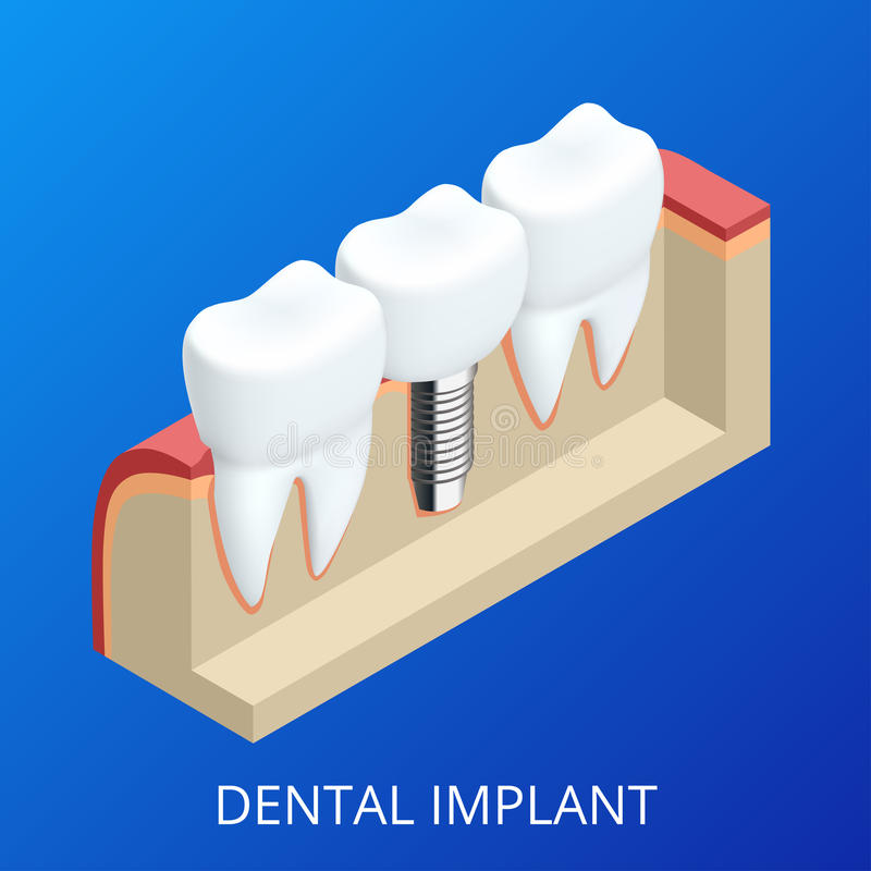 Implante humano del diente isométrico Concepto dental Dientes o dentaduras humanos ilustración 3D aislada Vector realista stock de ilustración