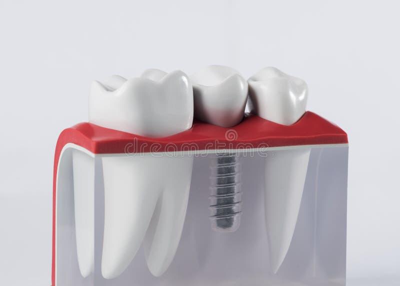Implante humano do dente fotografia de stock