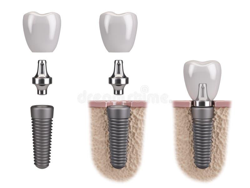 Implante humano do dente ilustração royalty free