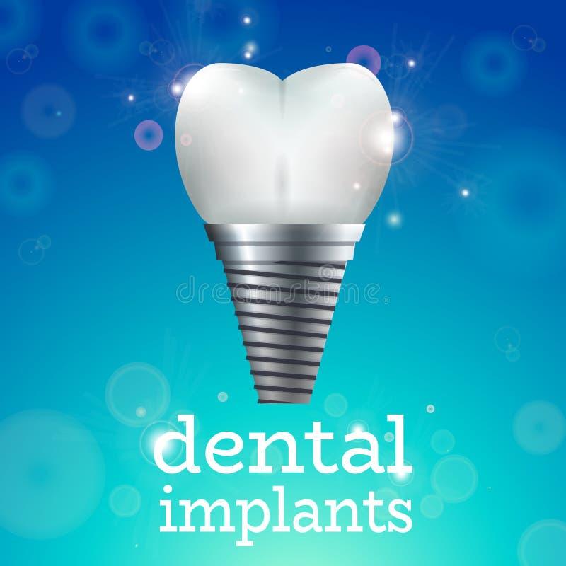 Implantes dentais 1 ilustração stock