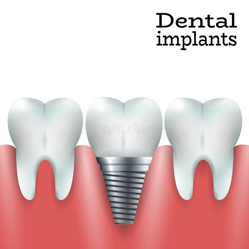 Implantes dentais 1 ilustração royalty free