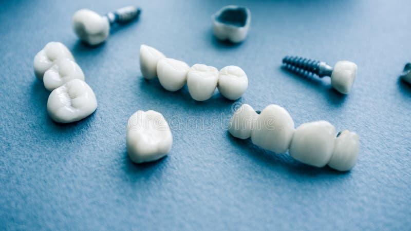 Implantes dentais cerâmicos da ortodontia cirúrgica fotografia de stock royalty free