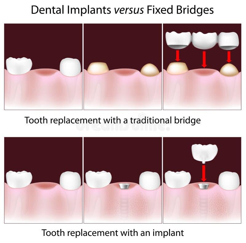 Implantes dentais contra pontes fixas ilustração royalty free