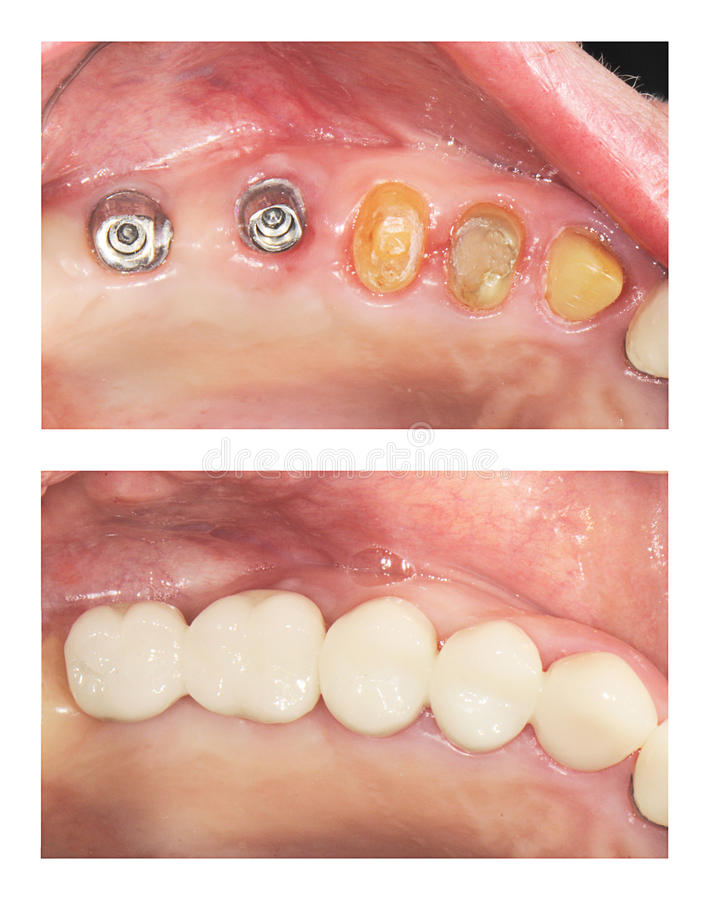 Before and after - implants and crowns. Top photo: 2 implants and 3 natural prepared teeth. Lower photo: 5 unit ceramic crowns on top of them stock photos