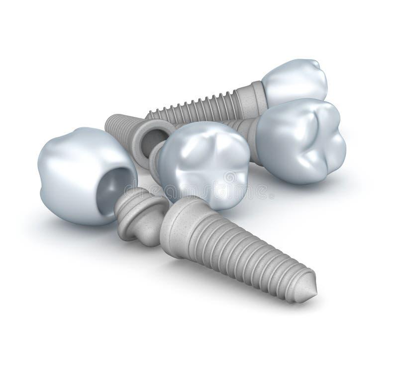 Implants dentaires, couronnes et goupilles illustration stock