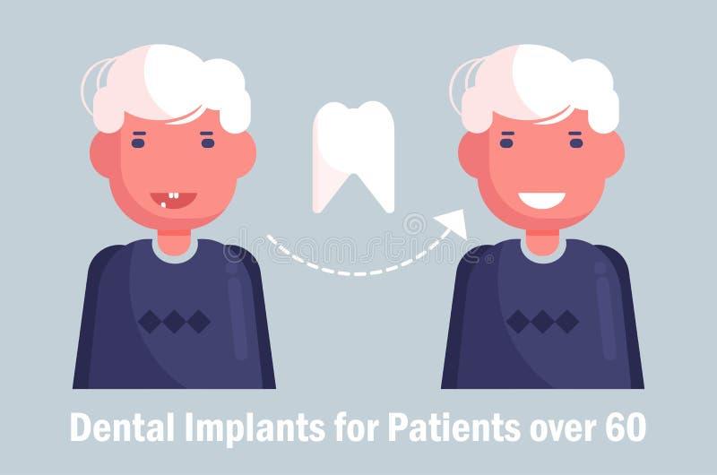 Implants dentaires pour le vecteur plus âgé cartoon Homme d'isolement d'art illustration de vecteur