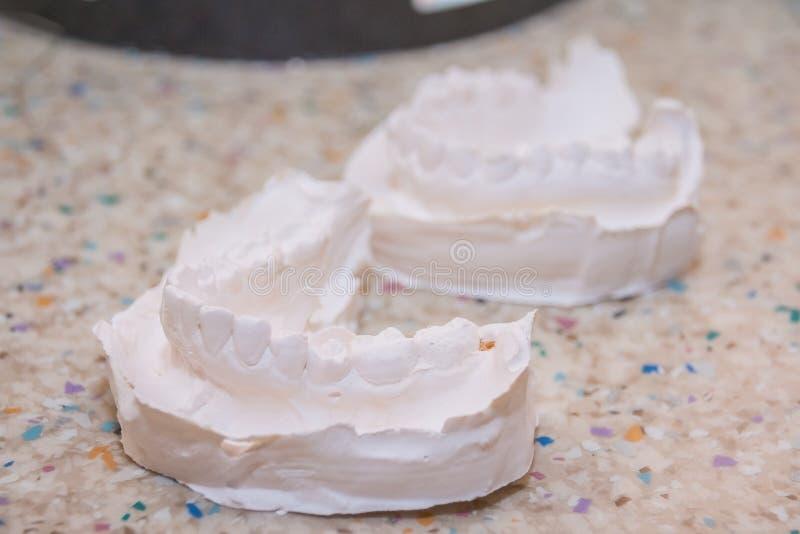 Impresión del yeso de dientes Molde del yeso dental El molde dental que mostraba los dientes en una tabla vio el lado encendido e fotografía de archivo libre de regalías