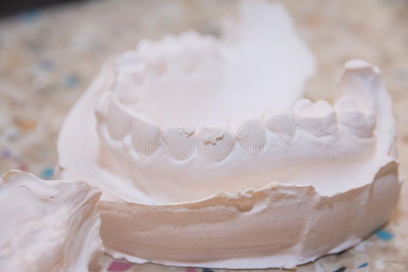 Impresión del yeso de dientes Molde del yeso dental El molde dental que mostraba los dientes en una tabla vio el lado encendido e imagen de archivo libre de regalías