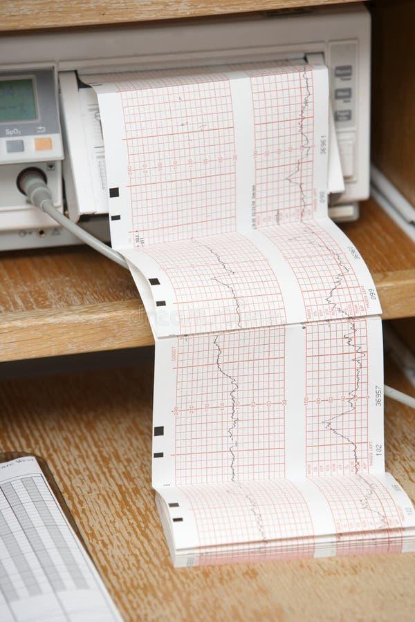 Impression d'EKG à l'extérieur photos stock
