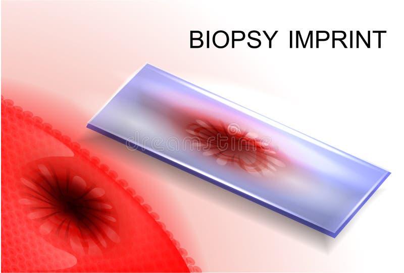 Impronta di biopsia diagnosi di cancro royalty illustrazione gratis