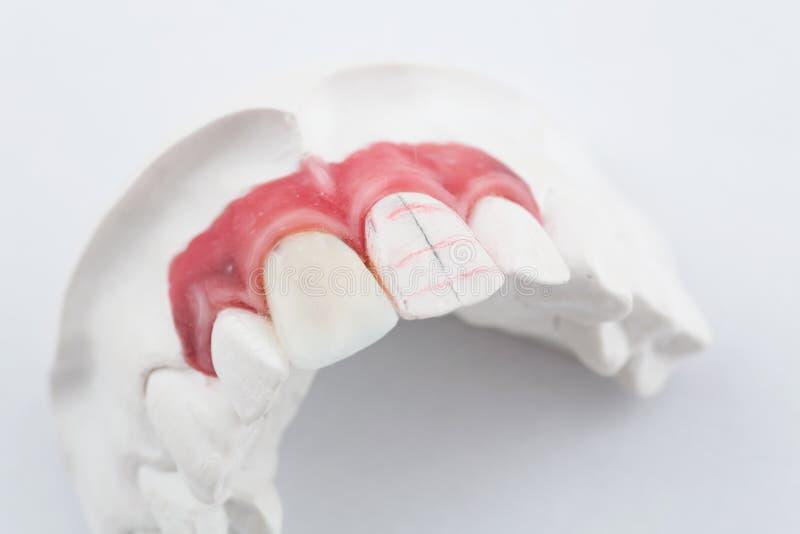 Inceri le corone dentarie dei denti del modello sul modello, vista frontale libera del metallo Impiallacciature anteriori ceramic immagine stock