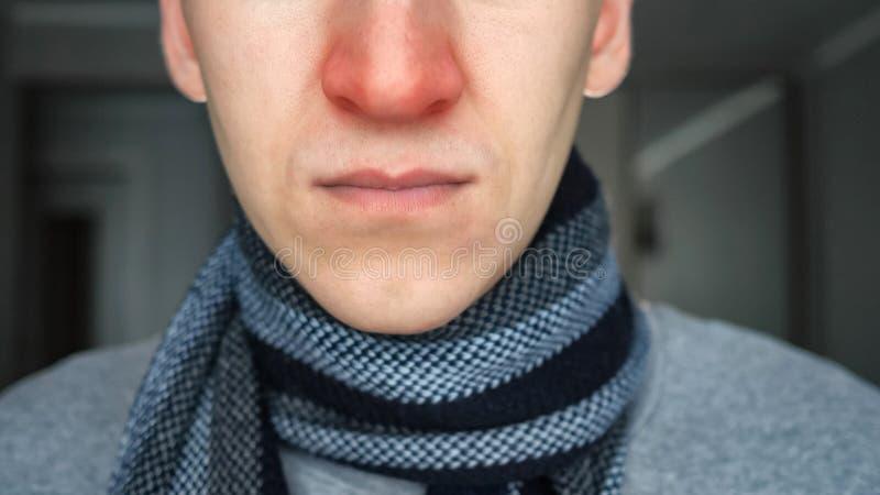 Individuo enfermo irreconocible en bufanda caliente con una nariz roja fotografía de archivo libre de regalías