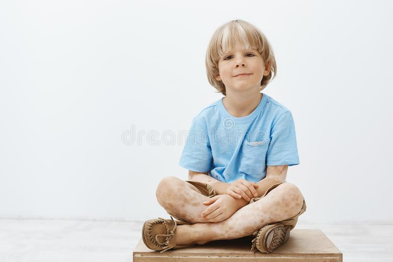 Indoor shot of cute happy blond child with positive smile sitting with crossed hands, having vitiligo, smiling broadly stock image