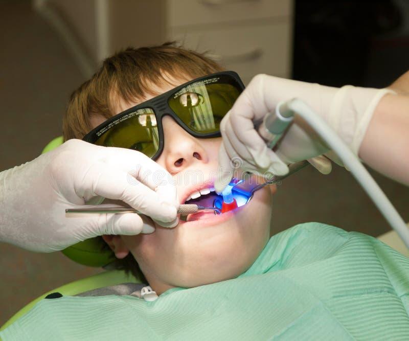 Indurimento del materiale da otturazione dentario immagini stock