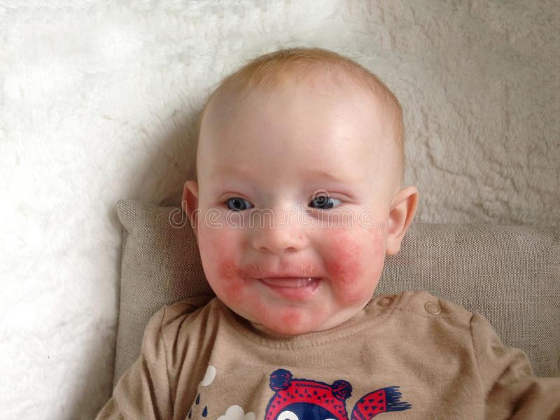 Infant with signs of allergy on the face royalty free stock photography