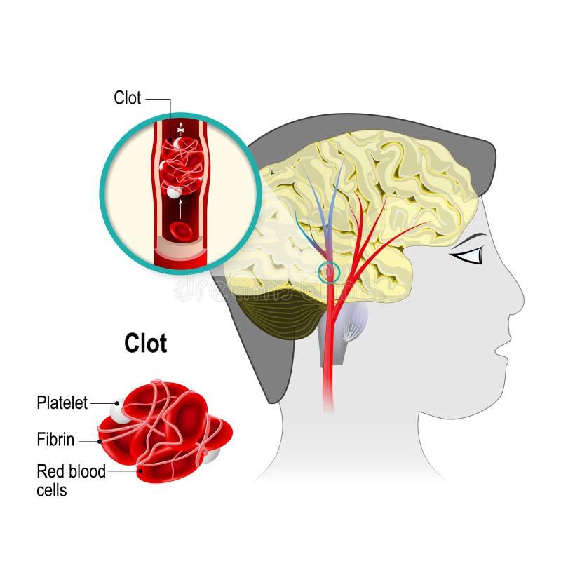 Infarctus cérébral illustration de vecteur