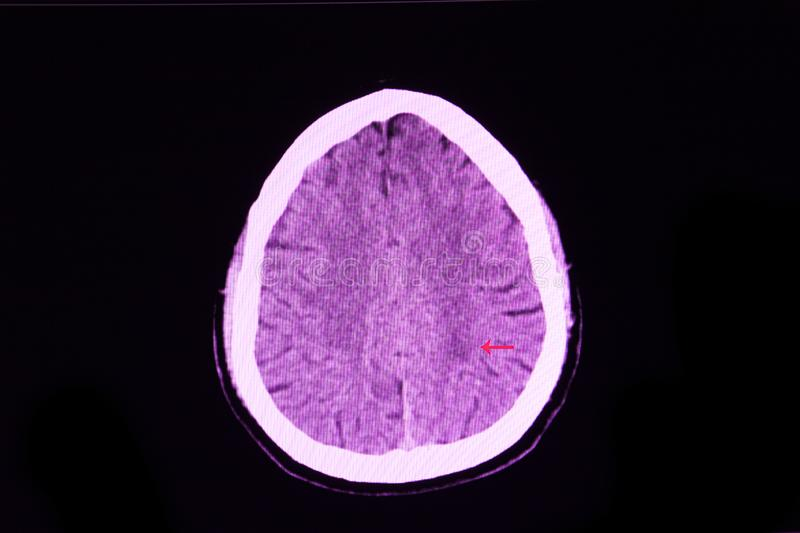 Infarctus c?r?bral photos stock