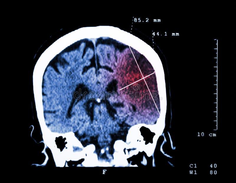 Infarto cerebral en el hemisferio izquierdo (movimiento isquémico) (CT-exploración del cerebro): Fondo de la medicina y de la cie imágenes de archivo libres de regalías