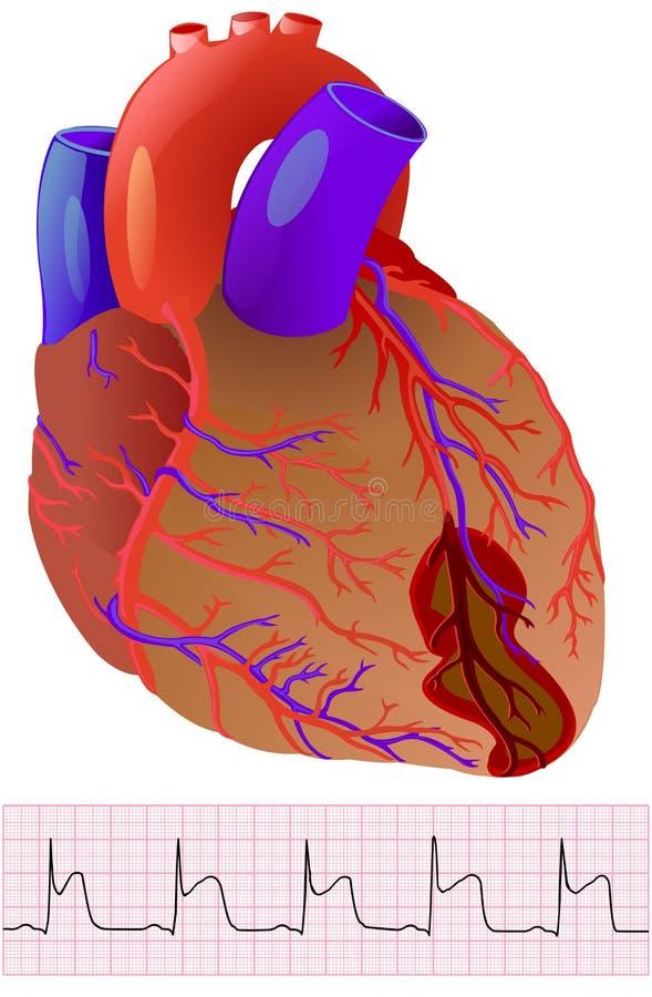 Infarto: corazón y cardiograma humanos coloridos en el blanco stock de ilustración