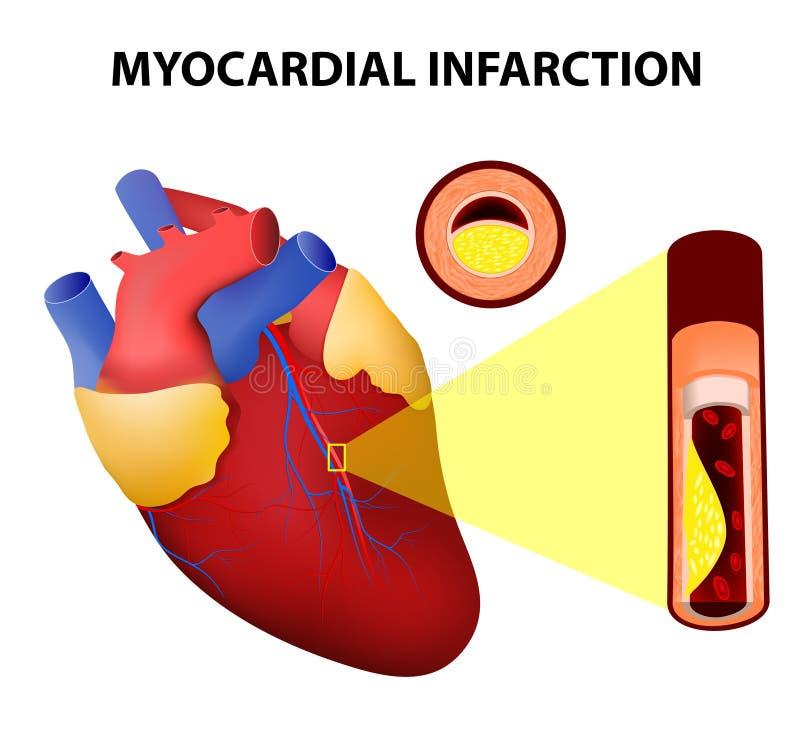Infarto del miocardio ilustración del vector