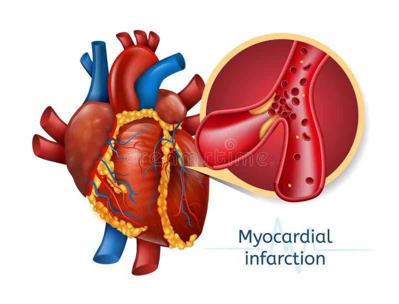 Infarto del miocardio corazón de 3d Realostic stock de ilustración
