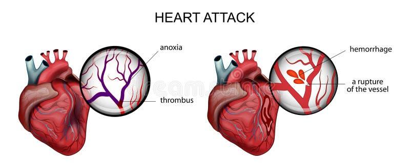 Infarto del miocardio trombosis y hemorragia ilustración del vector
