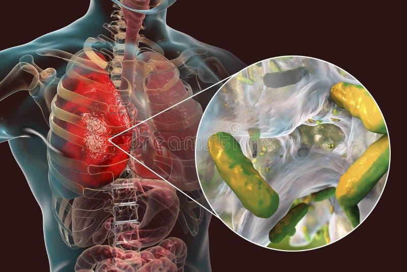 Infecção causada por pseudomonas das bactérias - aeruginosa do pulmão ilustração do vetor