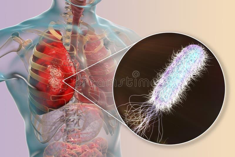 Infecção causada por pseudomonas das bactérias - aeruginosa do pulmão ilustração royalty free