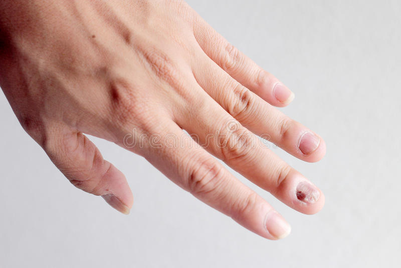 Infecção do fungo em pregos mão, dedo com onychomycosis - foco macio imagens de stock