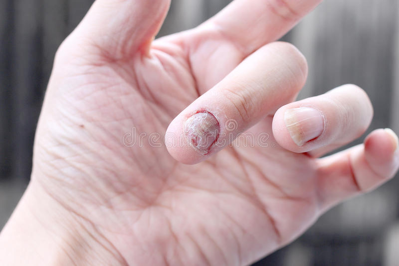 Infecção do fungo em pregos mão, dedo com onychomycosis - foco macio fotos de stock royalty free