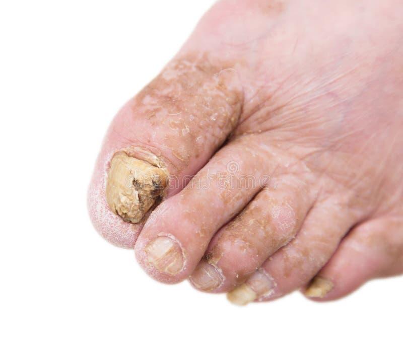 Infecção do fungo em pregos do pé do ` s do homem imagem de stock