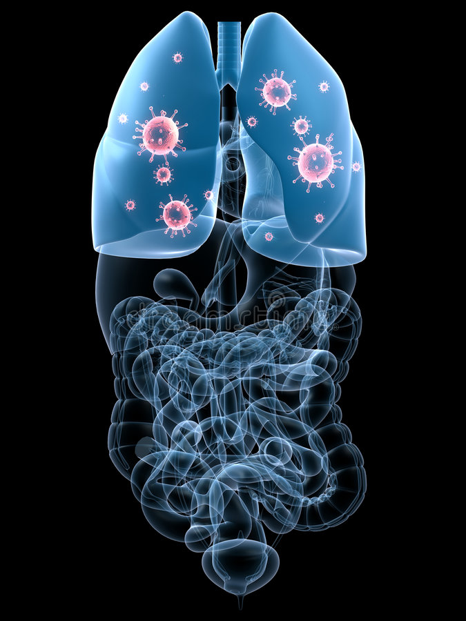 Infecção do pulmão ilustração stock