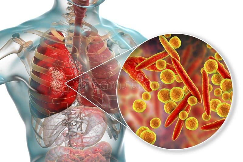 Infecção do pulmão causada por pneumoniae do Mycoplasma das bactérias ilustração do vetor