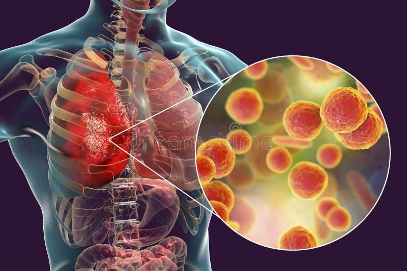 Infecção do pulmão causada por pneumoniae do Mycoplasma das bactérias ilustração royalty free
