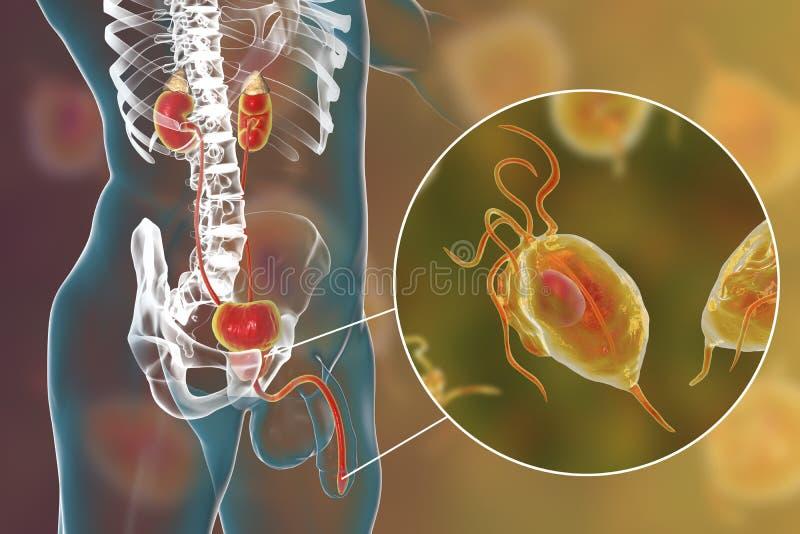 Infecção do Trichomoniasis no homem ilustração stock