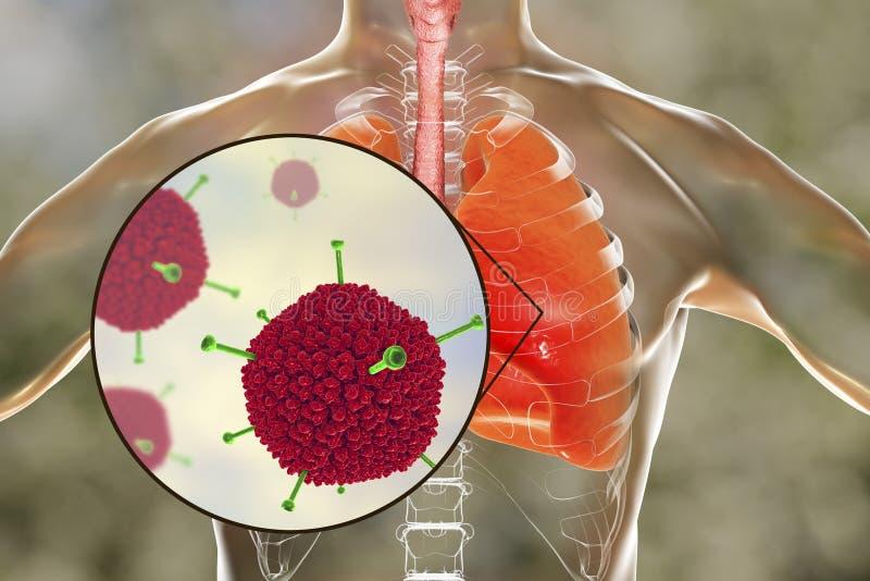 Infecção do vírus adenoide, vírus adenoides nos pulmões humanos ilustração do vetor