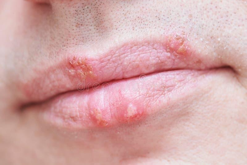Infecção do vírus de palavra simples de herpes nos bordos masculinos da cara foto de stock