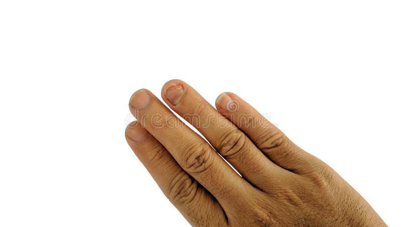 Infecção fungosa do prego no dedo de anel, isolado no branco imagem de stock royalty free