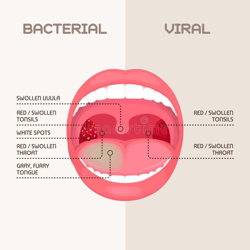 Infección Bacteriana De La Garganta, Inflamación De Las Amígdalas ...