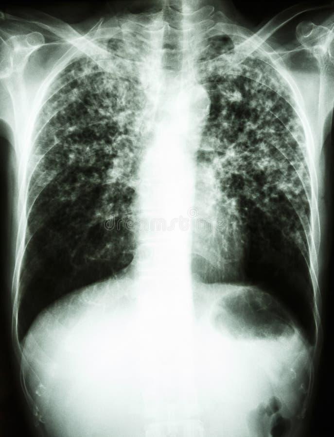 Infección de la tuberculosis de micobacteria (tuberculosis pulmonar) imágenes de archivo libres de regalías