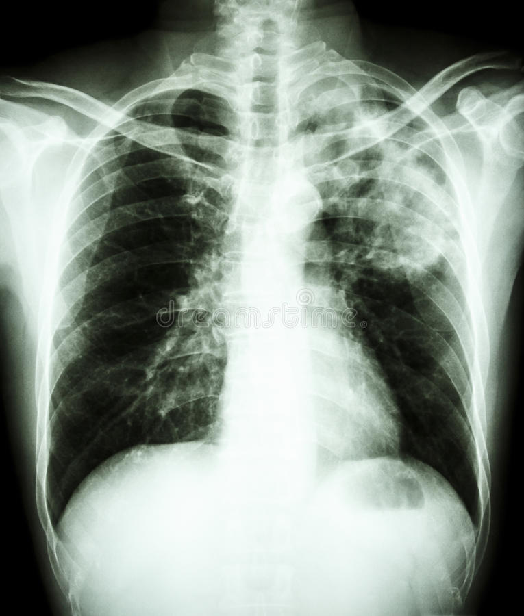 Infección de la tuberculosis de micobacteria (tuberculosis pulmonar) fotografía de archivo