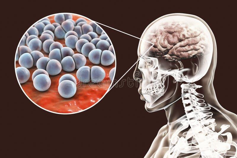 Infección del cerebro causada por el estreptococo bacterias de los pneumoniae ilustración del vector