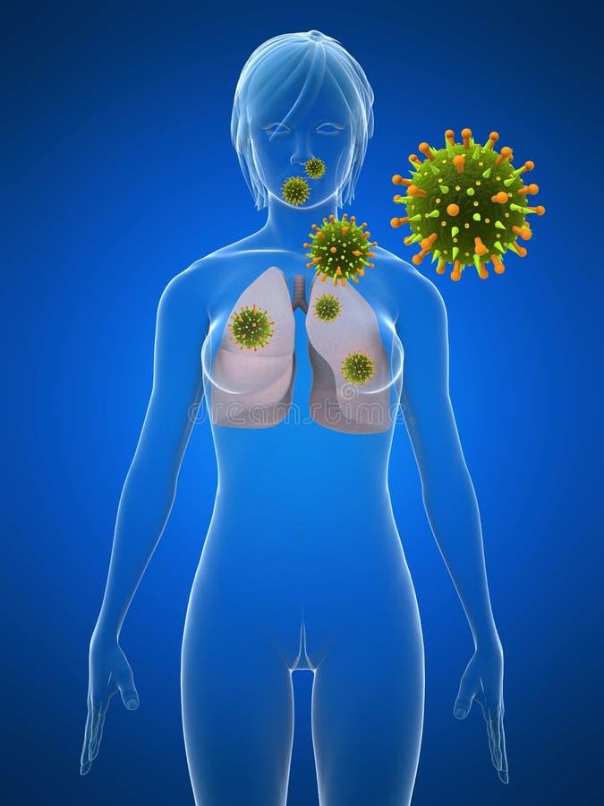 Infección del pulmón ilustración del vector