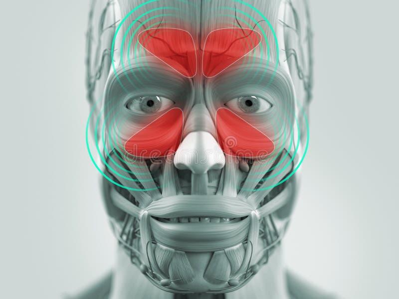 Infección modelo del sino de la anatomía que muestra ilustración del vector