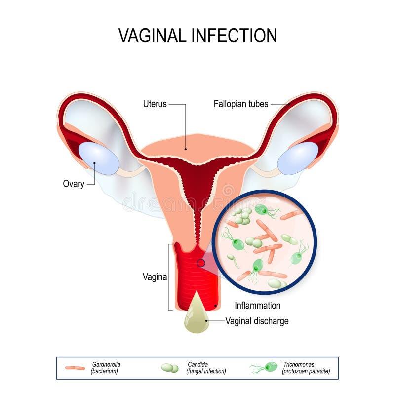Infección vaginal y agentes causativos de la vulvovaginitis ilustración del vector