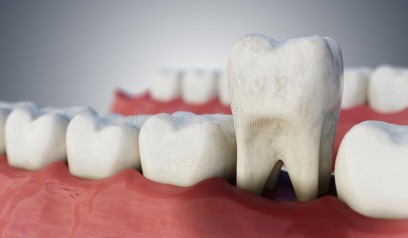 Infected tooth in mouth. 3D rendered illustration.  royalty free illustration