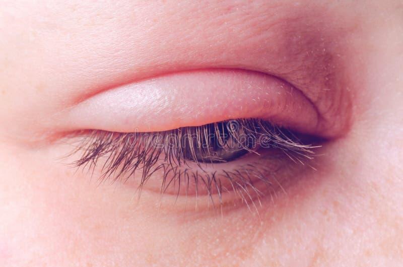Infection d'orge sur l'oeil image stock