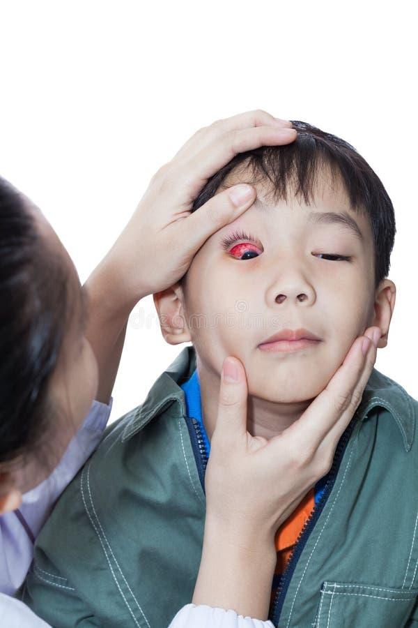 Infection de conjonctivite aiguë contagieuse (conjonctivite) sur un garçon, contrôle de docteur vers le haut d'oeil photo stock