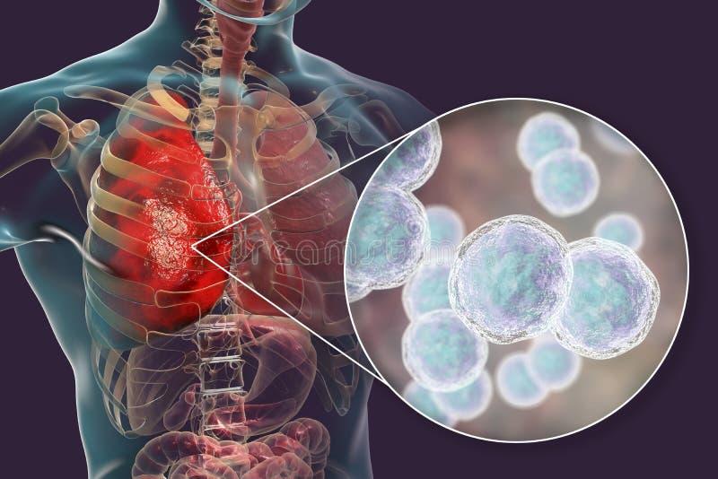 Infection de poumon provoquée par des catarrhalis de Moraxella de bactéries illustration de vecteur